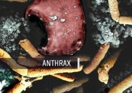 Bacillus Anthracis - Anthrax