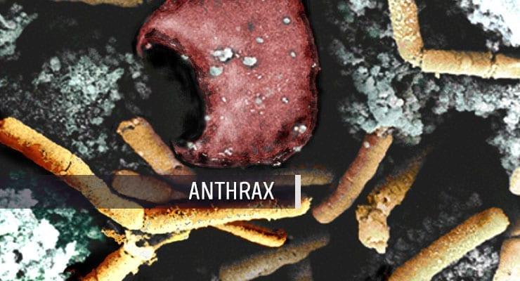 Bacillus Anthracis - Anthrax