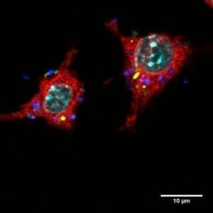 E-Coli Infected Macrophage