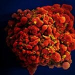 Human T-Cell infected with HIV