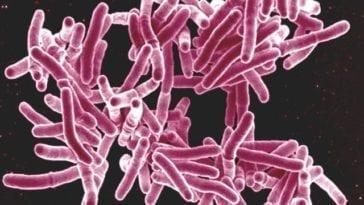 TB - Mycobacterium tuberculosis