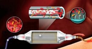 Sepsis Device Used to Prevent Infection