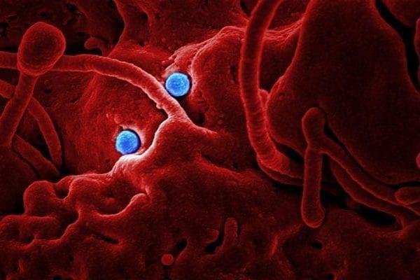 Japan Confirms First Case of New China Coronavirus 2019-nCoV