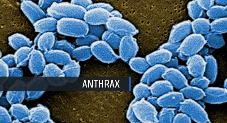 Anthrax Infection from Bacillus anthracis spores