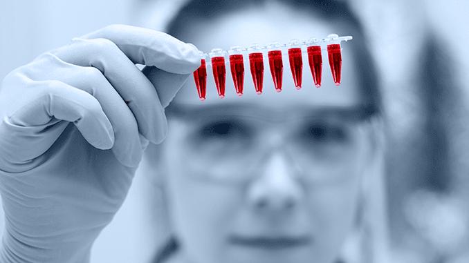 Shark Antibody Research