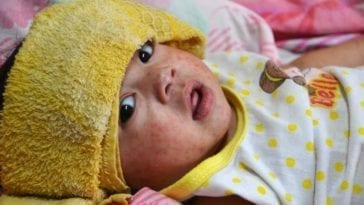 Baby hospitalized with measles (rubeola)
