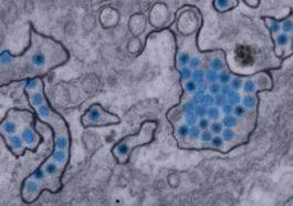 Zika Virus Particles