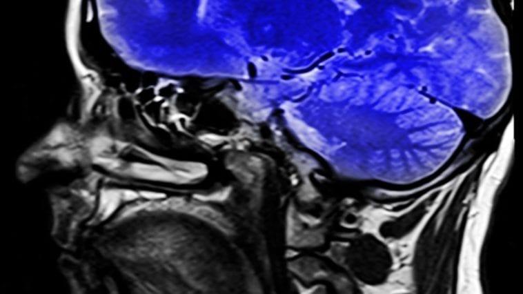 MRI of part of brain