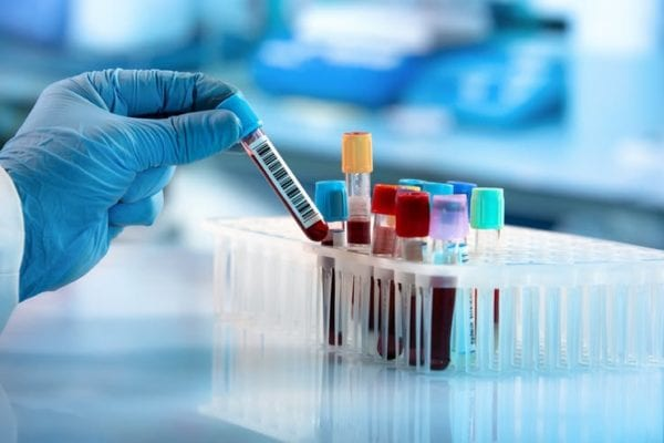 Blood Types and Coronavirus: Are People With Blood Group A Really at Higher Risk?